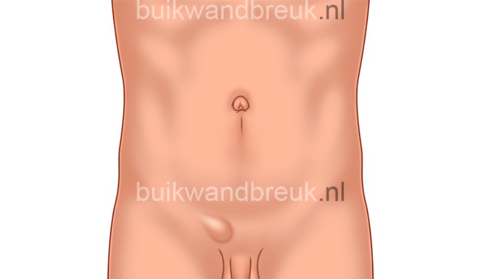 hernia-inguinalis-liesbreuk