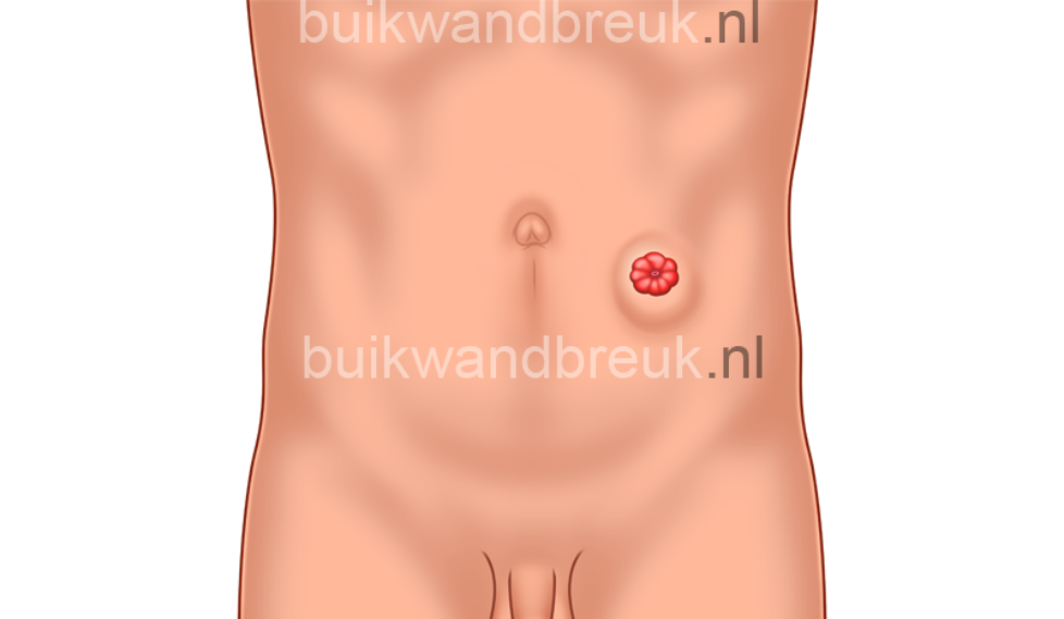 parastomale-hernia